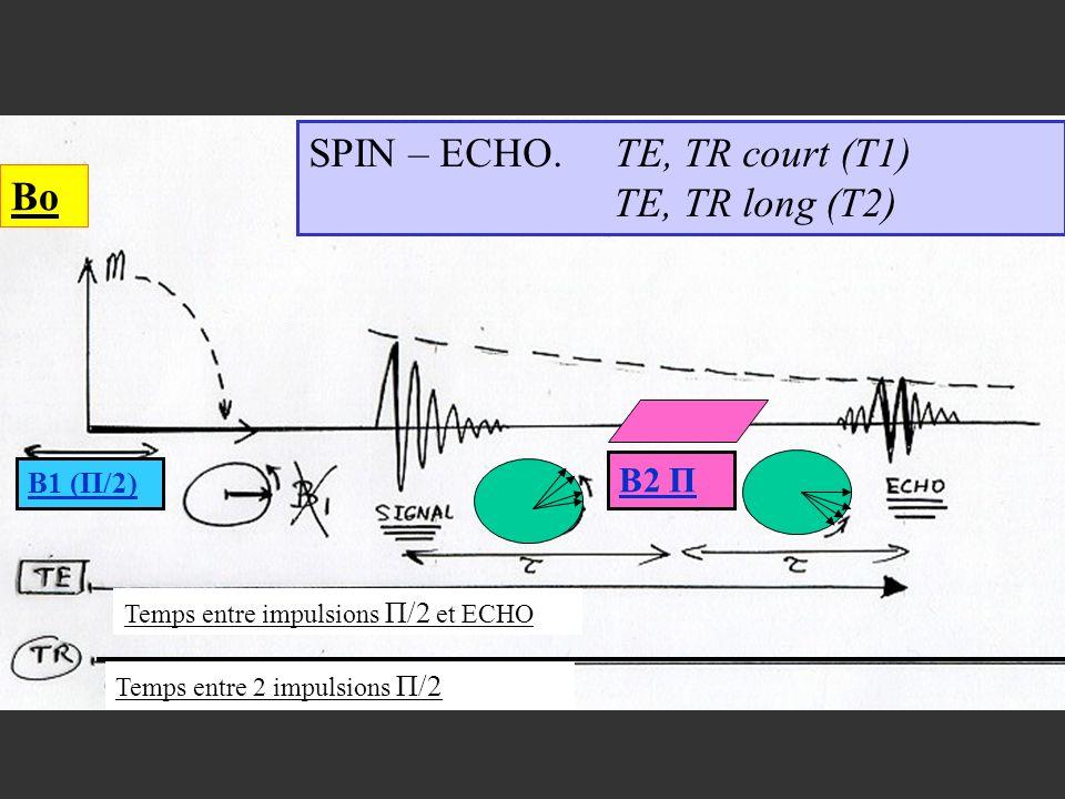 SPIN – ECHO. TE, TR court (T1) TE, TR long (T2)