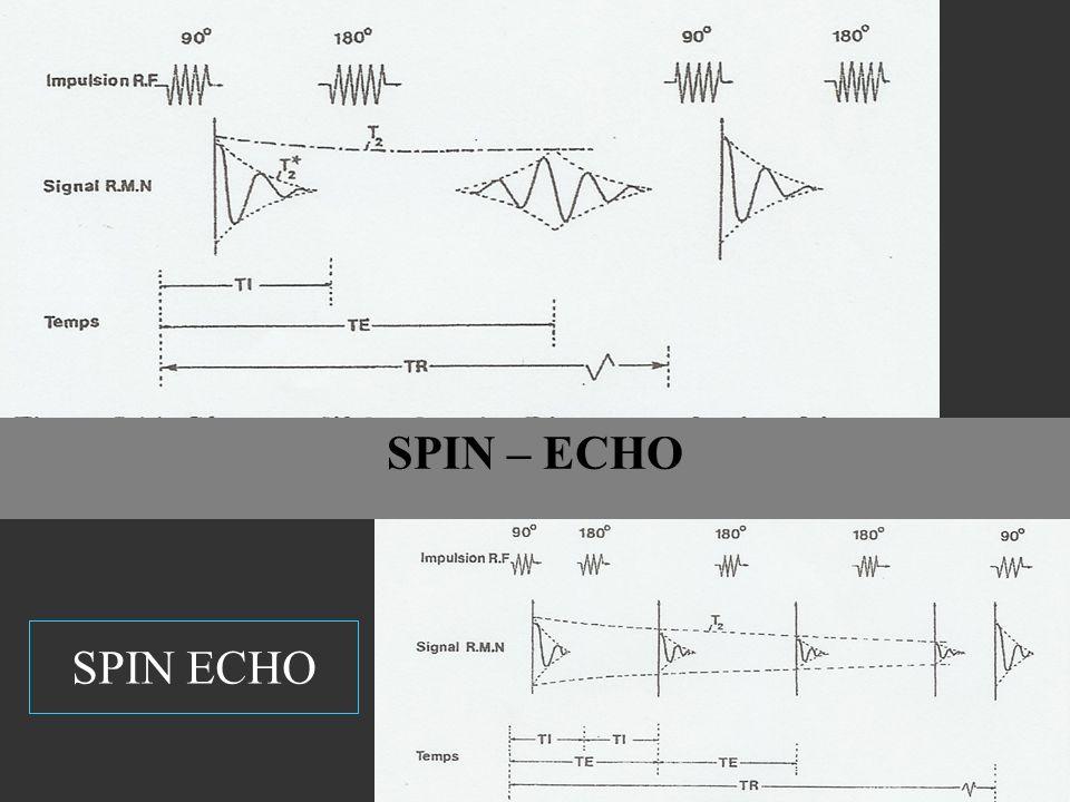 SPIN – ECHO SPIN ECHO