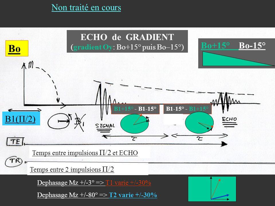 ECHO de GRADIENT (gradient Oy: Bo+15° puis Bo–15°)
