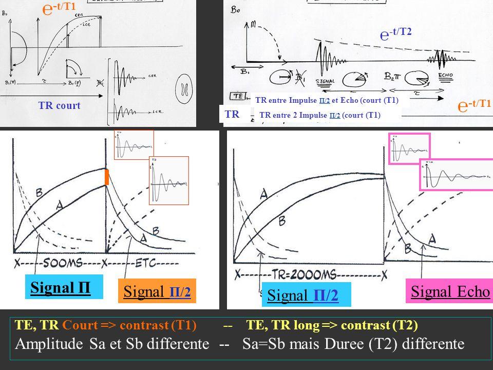 ℮-t/T1 ℮-t/T1 ℮-t/T2 Signal Π Signal Π/2 Signal Echo Signal Π/2