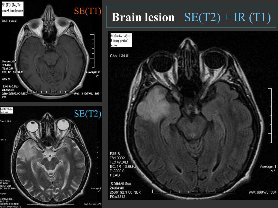 Brain lesion SE(T2) + IR (T1)