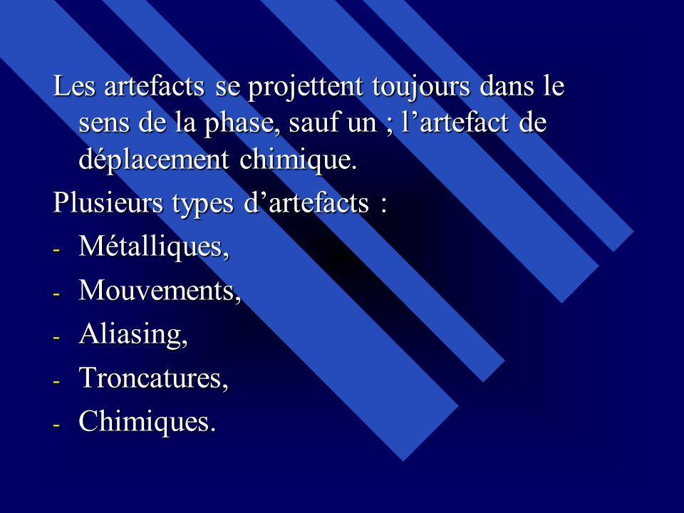 Les artefacts se projettent toujours dans le sens de la phase, sauf un ; l'artefact de déplacement chimique.