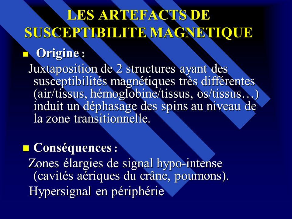 LES ARTEFACTS DE SUSCEPTIBILITE MAGNETIQUE