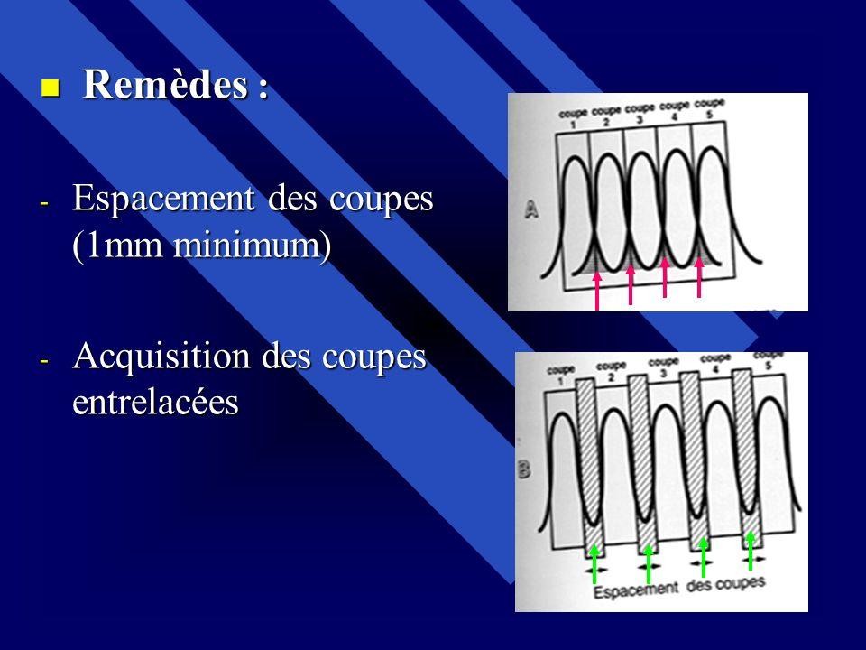 Remèdes : Espacement des coupes (1mm minimum) Acquisition des coupes entrelacées