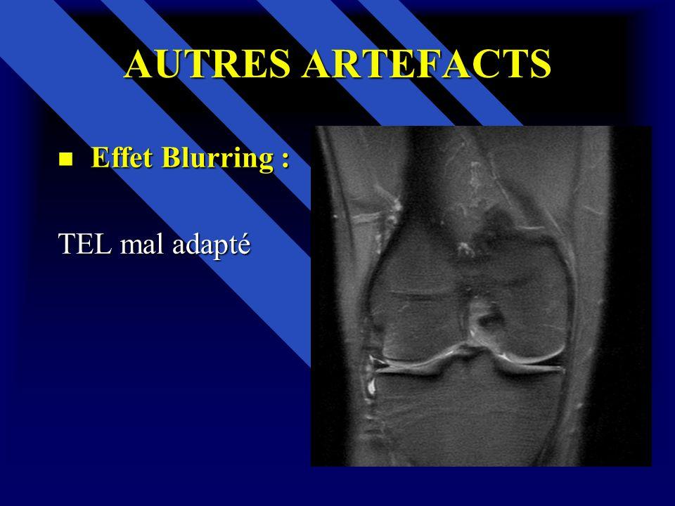 AUTRES ARTEFACTS Effet Blurring : TEL mal adapté