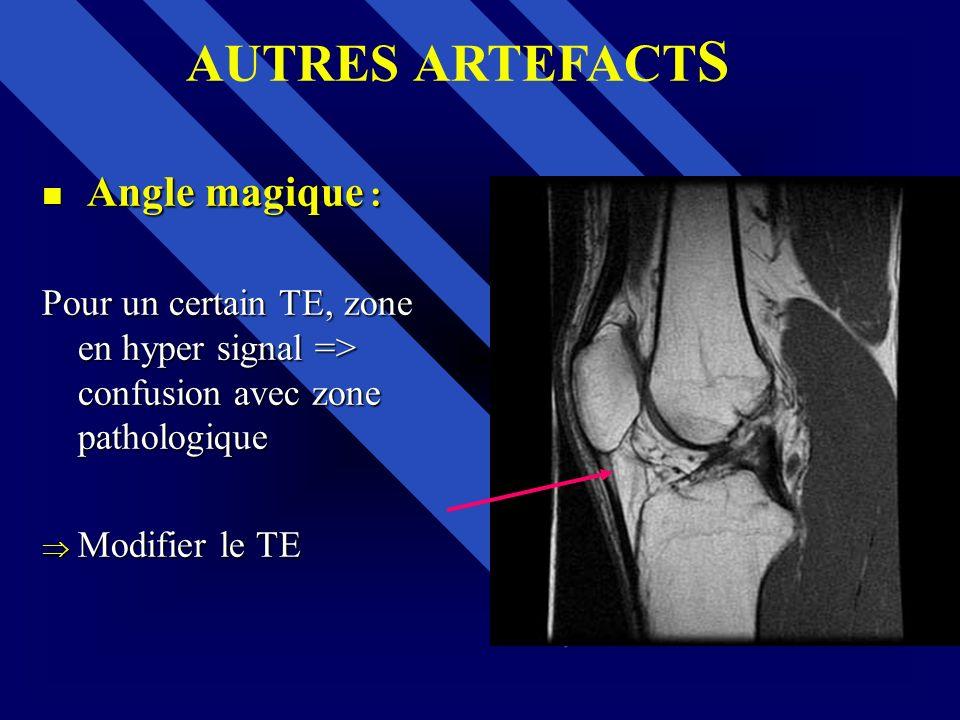AUTRES ARTEFACTS Angle magique :