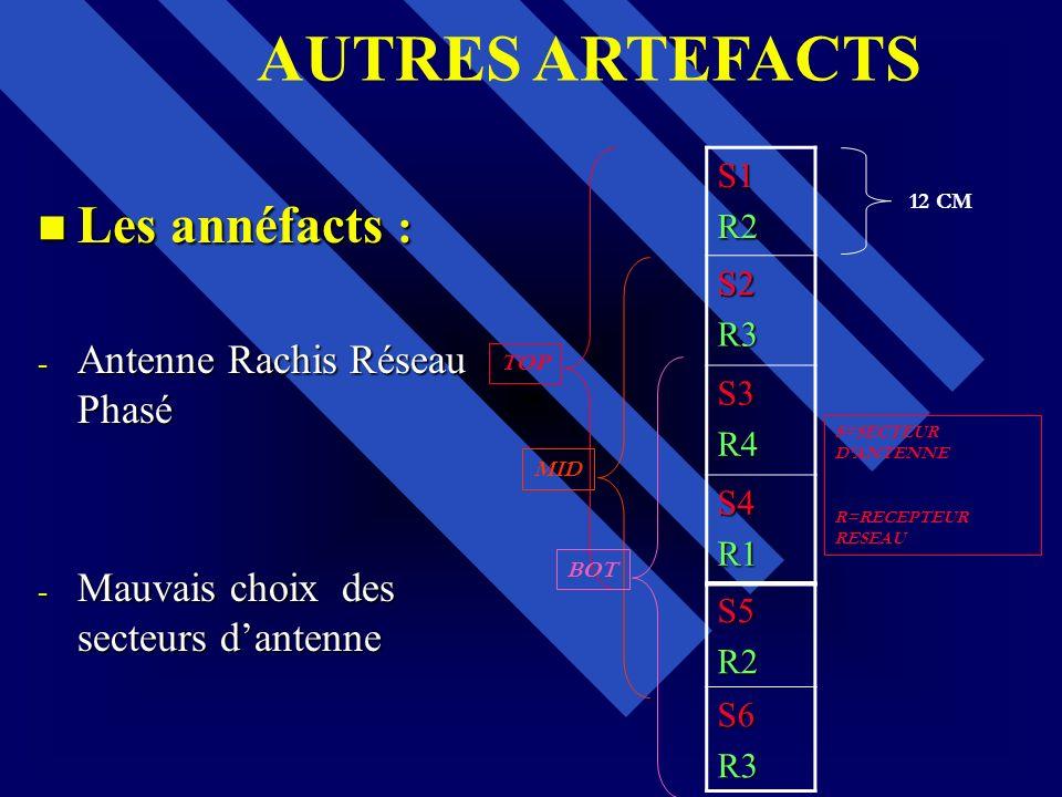 AUTRES ARTEFACTS Les annéfacts : Antenne Rachis Réseau Phasé
