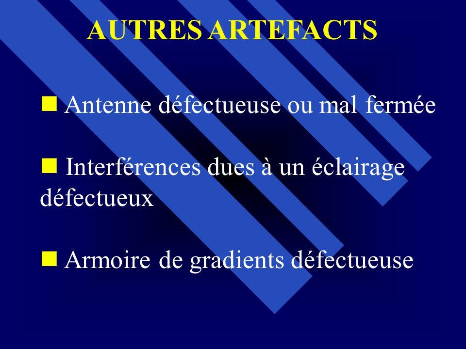 AUTRES ARTEFACTS Antenne défectueuse ou mal fermée