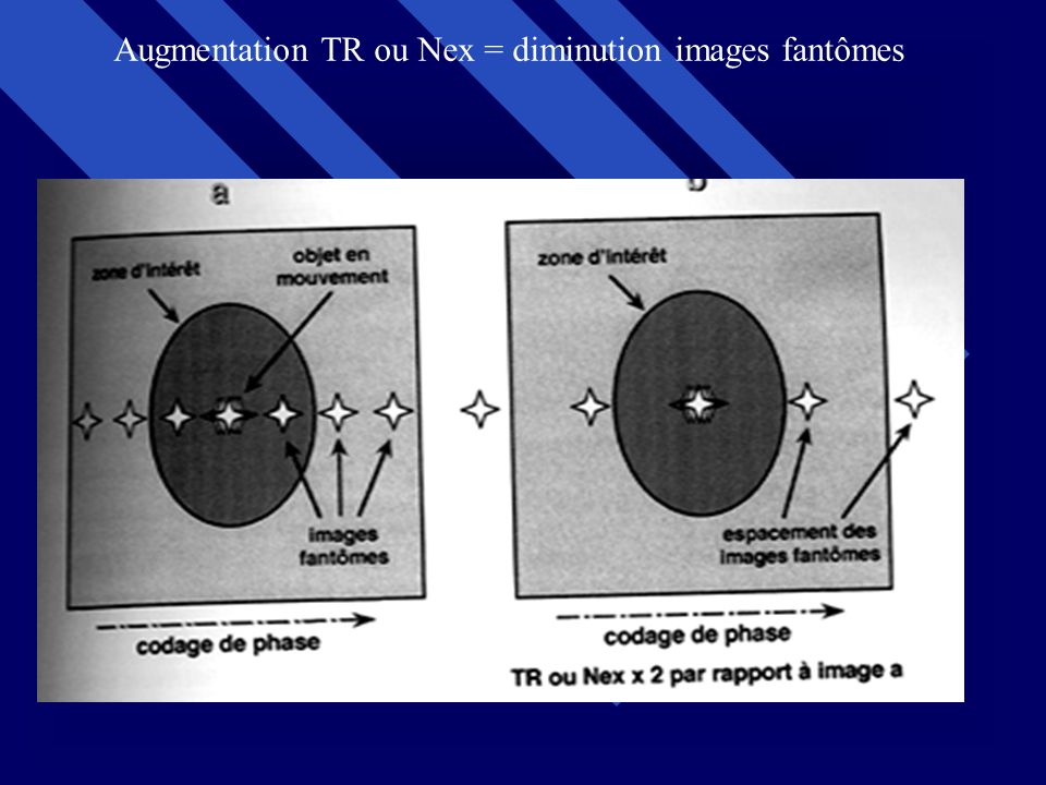 Augmentation TR ou Nex = diminution images fantômes