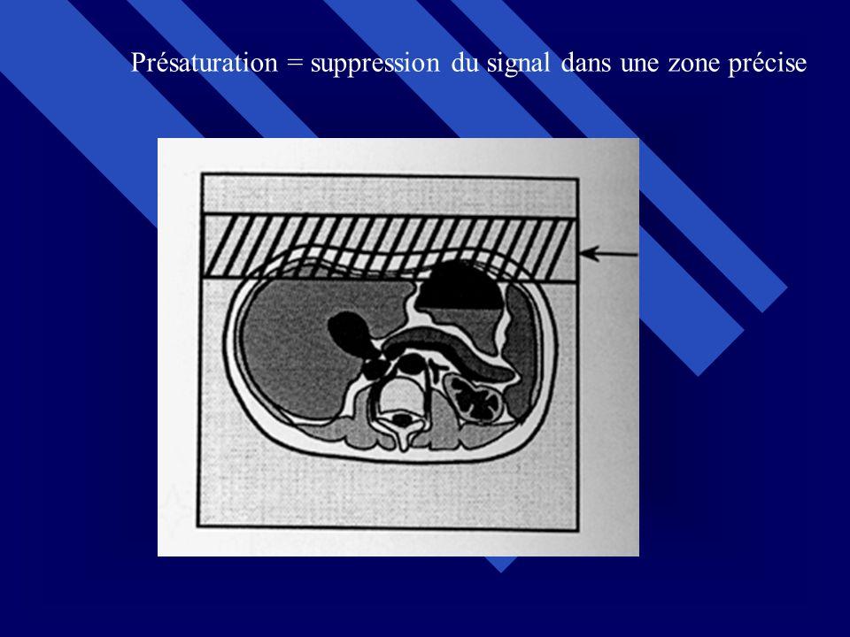 Présaturation = suppression du signal dans une zone précise