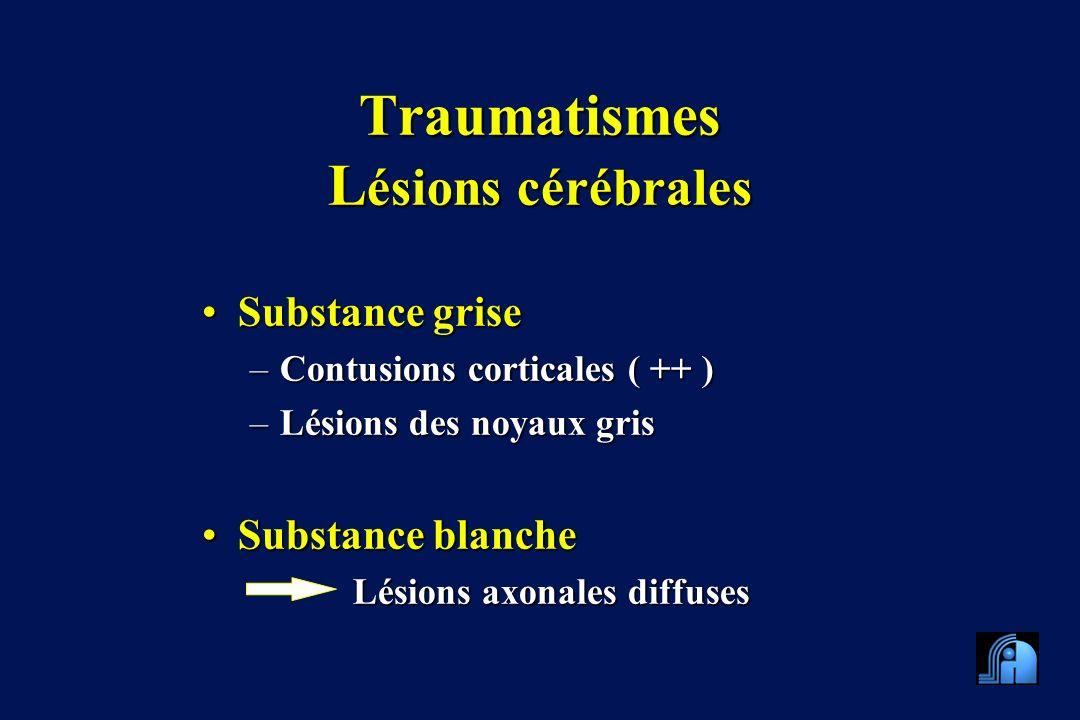 Traumatismes Lésions cérébrales