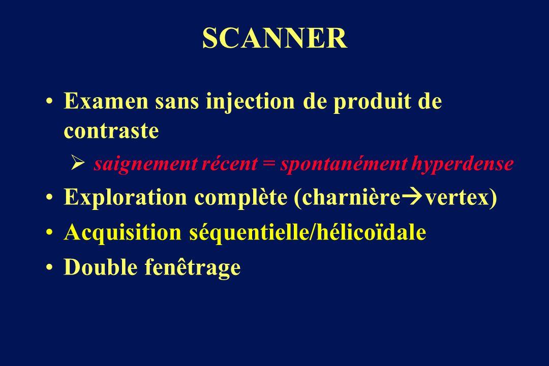 SCANNER Examen sans injection de produit de contraste