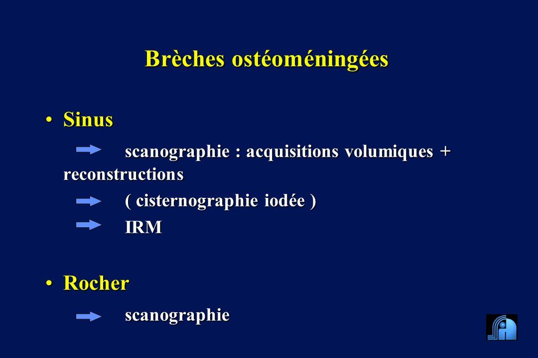 Brèches ostéoméningées