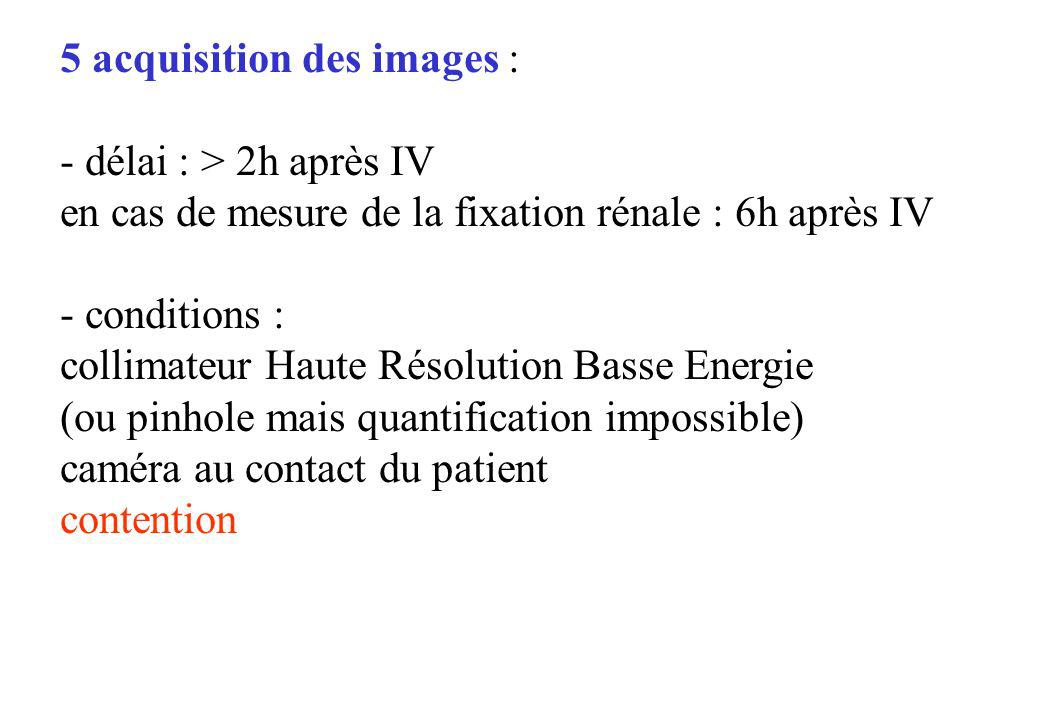 5 acquisition des images :