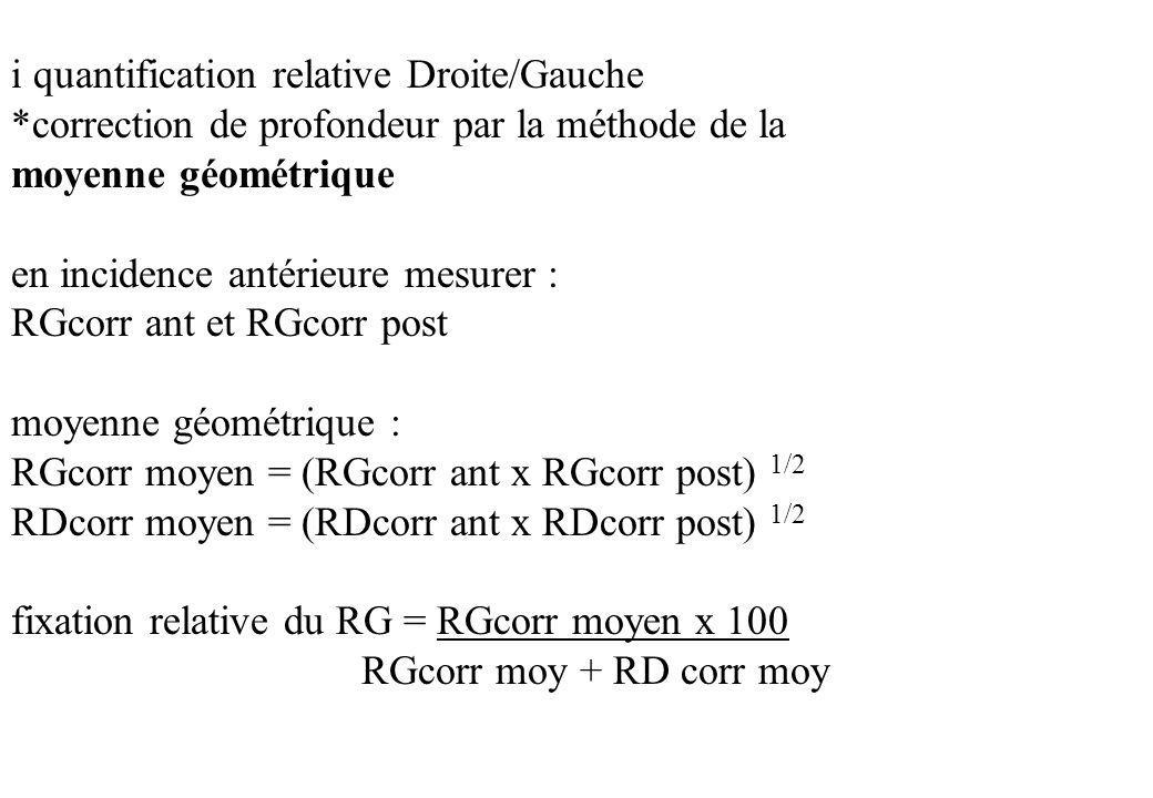 i quantification relative Droite/Gauche
