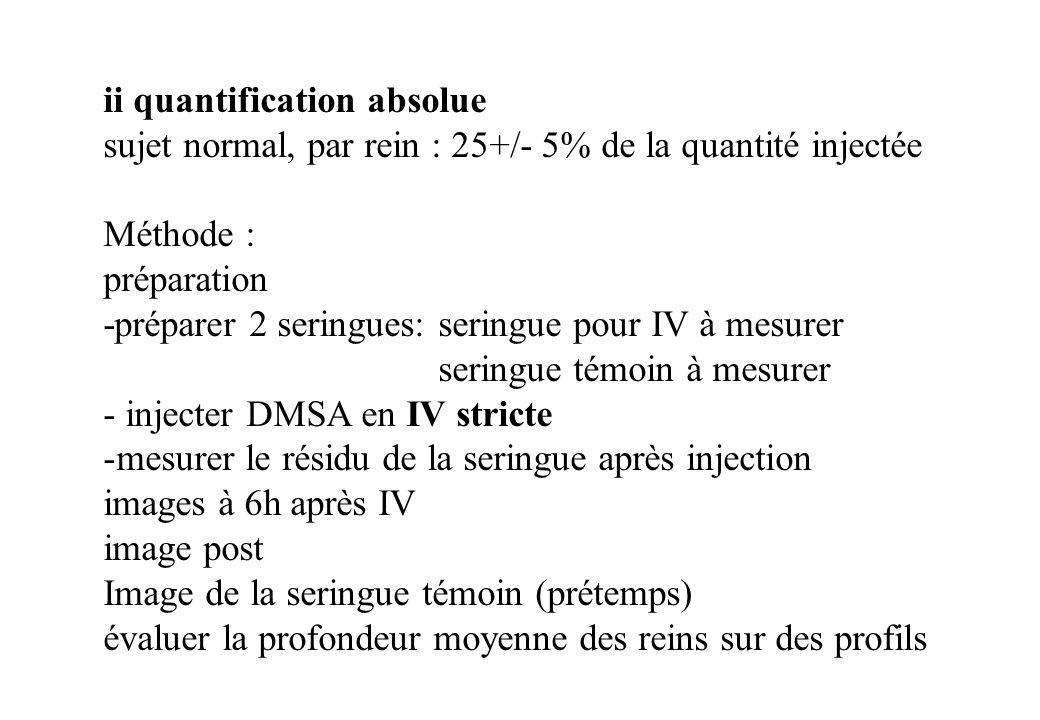 ii quantification absolue