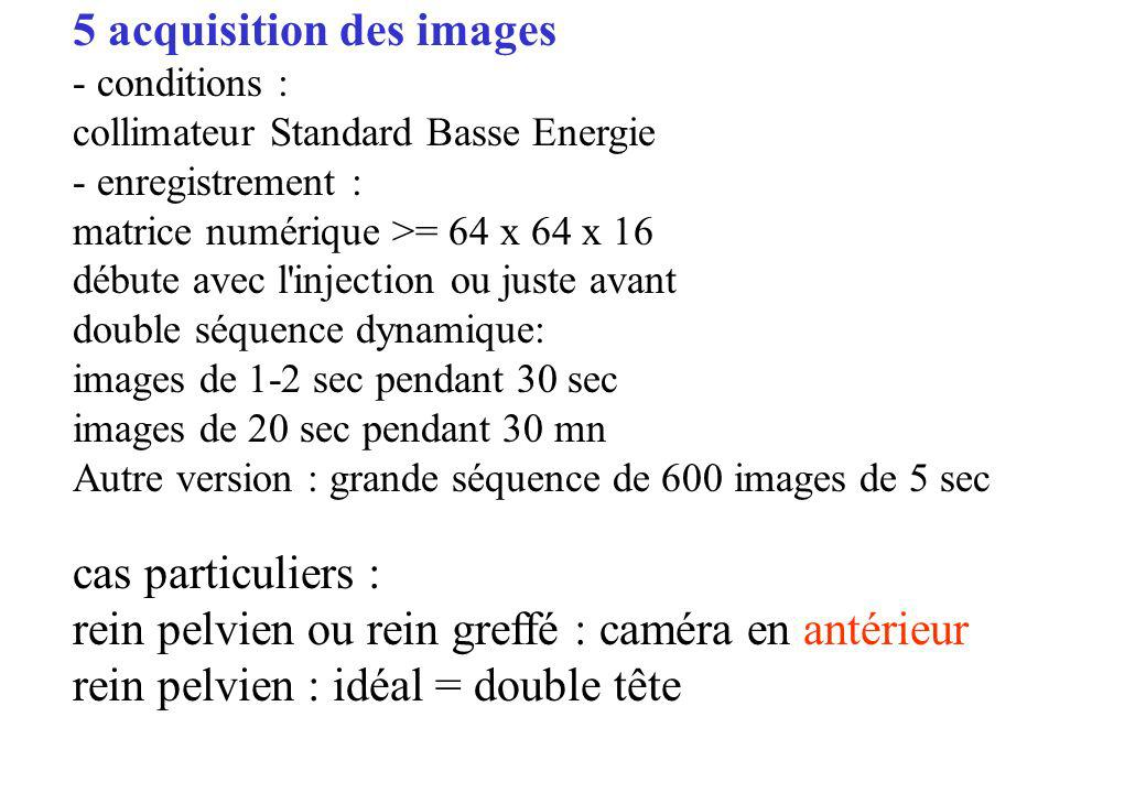 5 acquisition des images