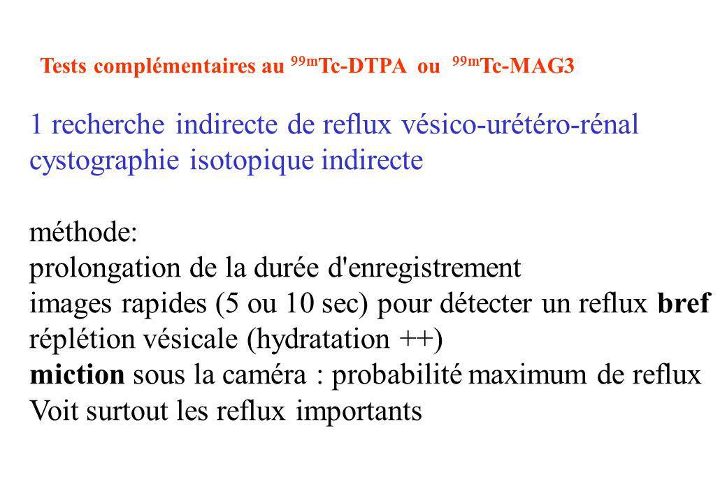 1 recherche indirecte de reflux vésico-urétéro-rénal