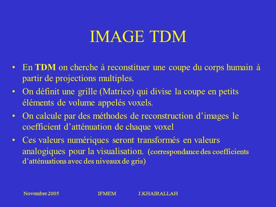 IMAGE TDM En TDM on cherche à reconstituer une coupe du corps humain à partir de projections multiples.