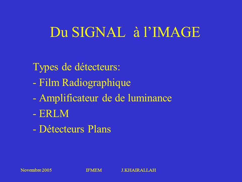 Du SIGNAL à l'IMAGE Types de détecteurs: Film Radiographique