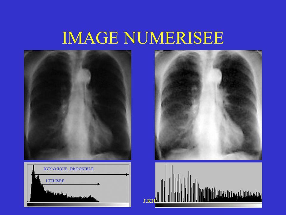 IMAGE NUMERISEE Étalement d'histogramme Novembre 2005