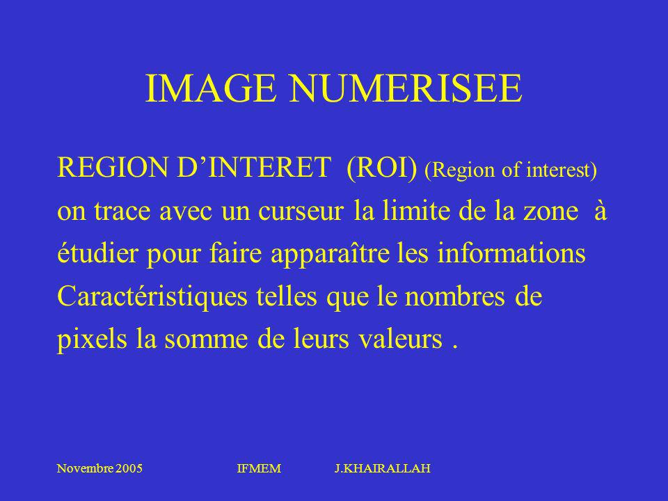 IMAGE NUMERISEE REGION D'INTERET (ROI) (Region of interest)
