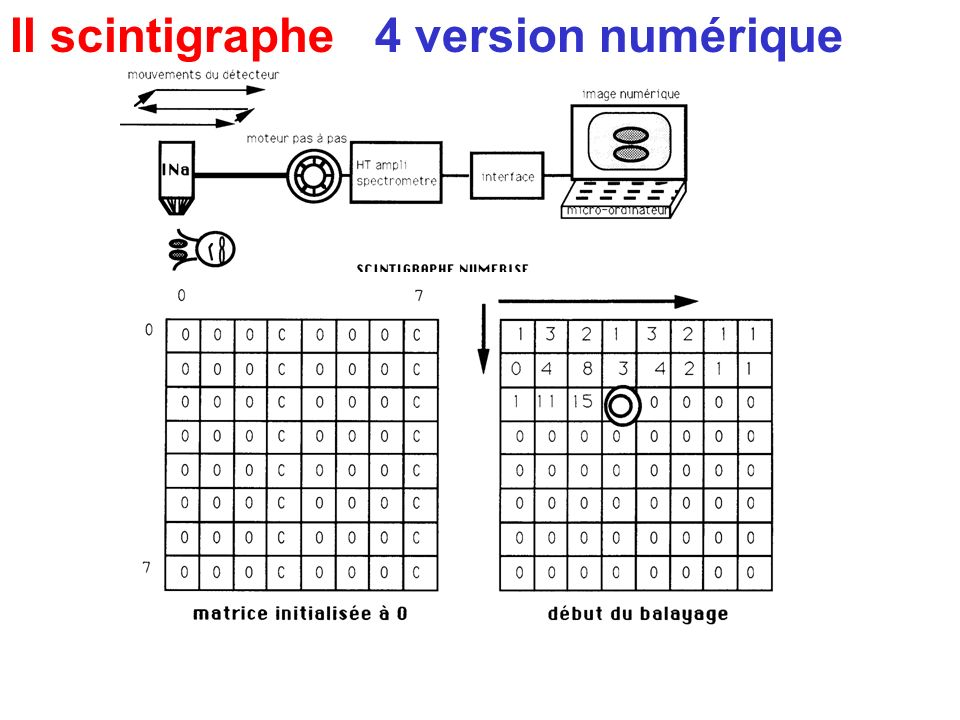 II scintigraphe 4 version numérique