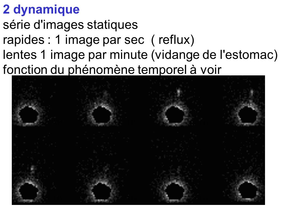 2 dynamique série d images statiques. rapides : 1 image par sec ( reflux) lentes 1 image par minute (vidange de l estomac)