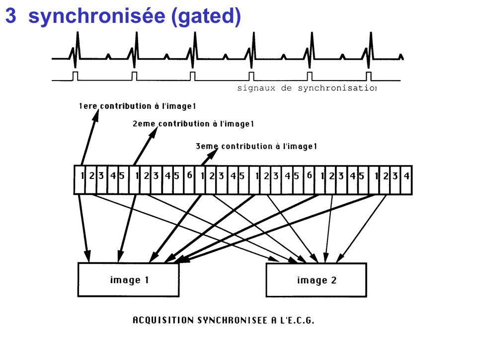 3 synchronisée (gated)