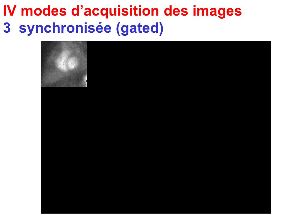 IV modes d'acquisition des images