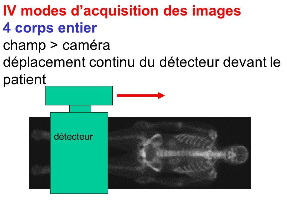 IV modes d'acquisition des images 4 corps entier champ > caméra