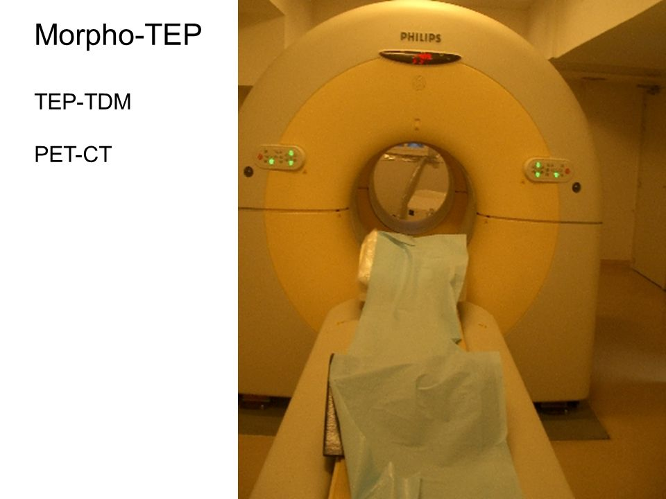 Morpho-TEP TEP-TDM PET-CT