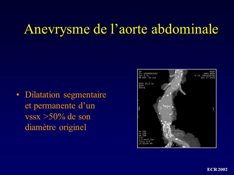 Anevrysme de l'aorte abdominale