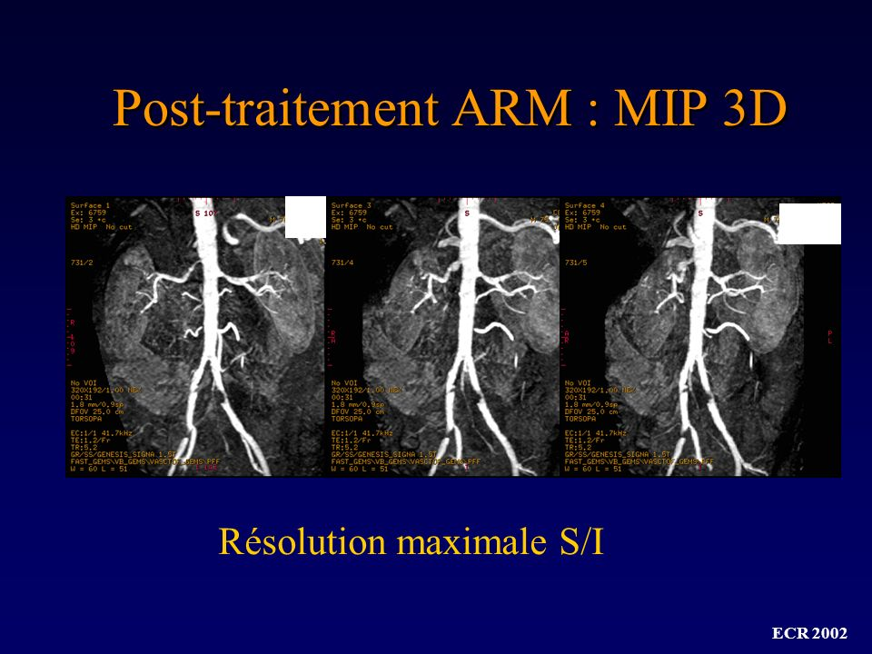 Post-traitement ARM : MIP 3D