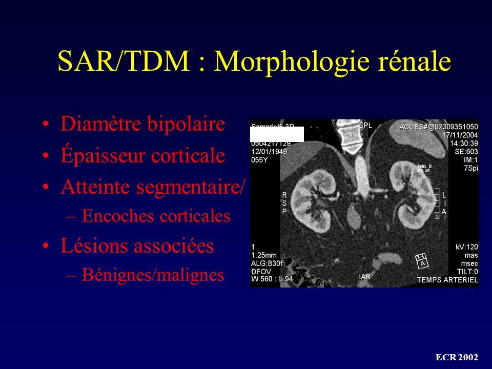 SAR/TDM : Morphologie rénale