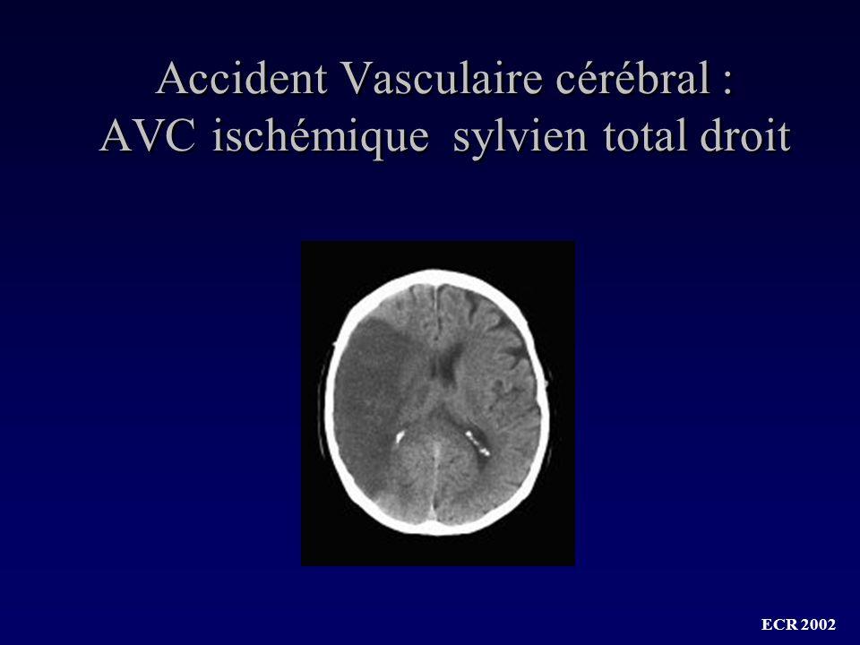 Accident Vasculaire cérébral : AVC ischémique sylvien total droit