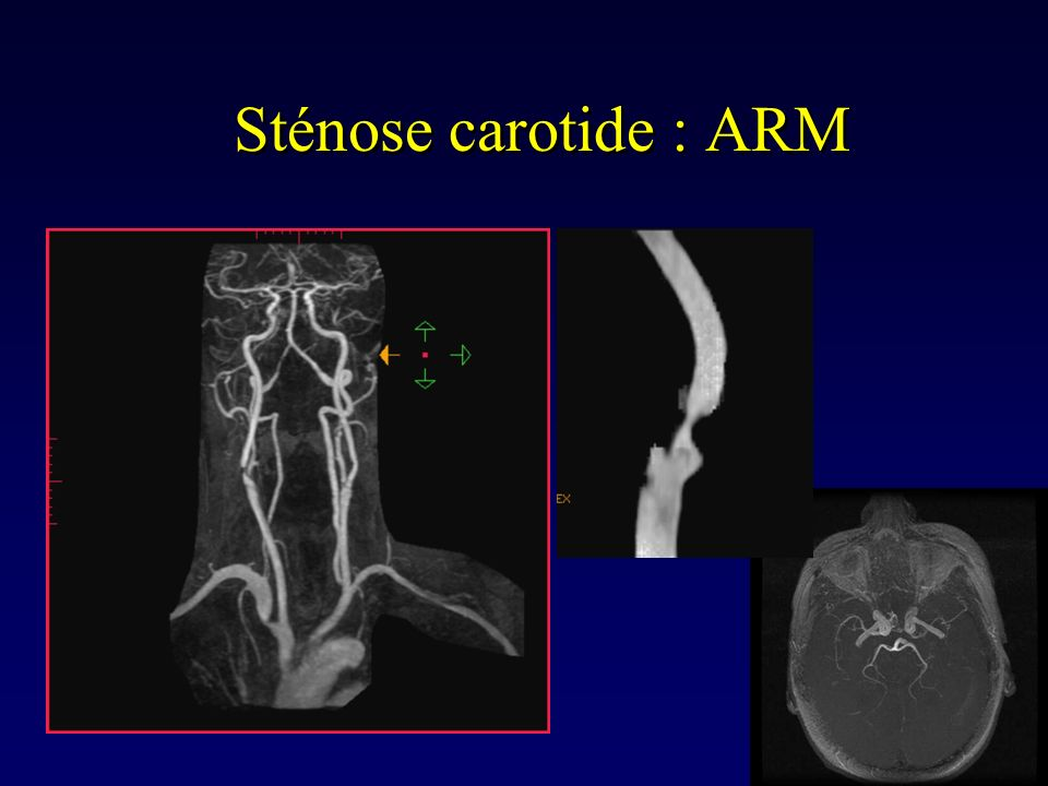 Sténose carotide : ARM