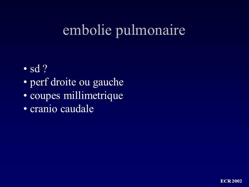 embolie pulmonaire sd perf droite ou gauche coupes millimetrique