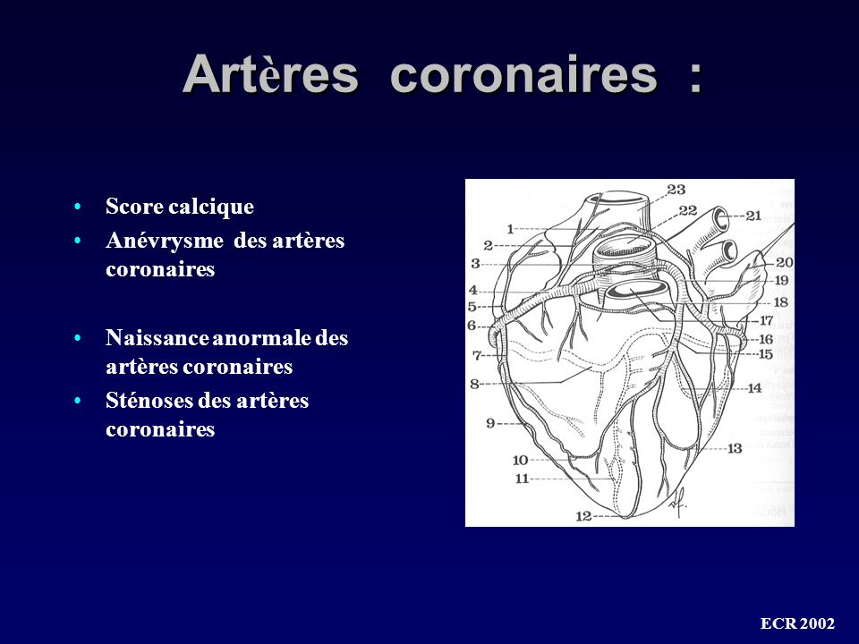 Artères coronaires : Score calcique Anévrysme des artères coronaires