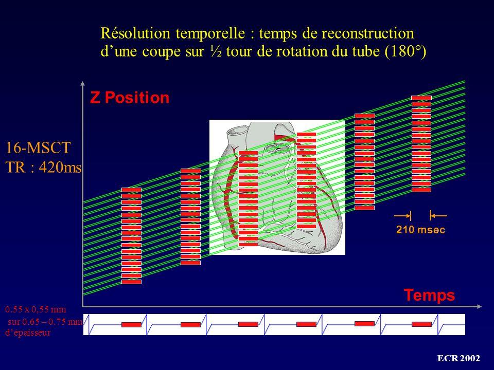 Résolution temporelle : temps de reconstruction d'une coupe sur ½ tour de rotation du tube (180°)
