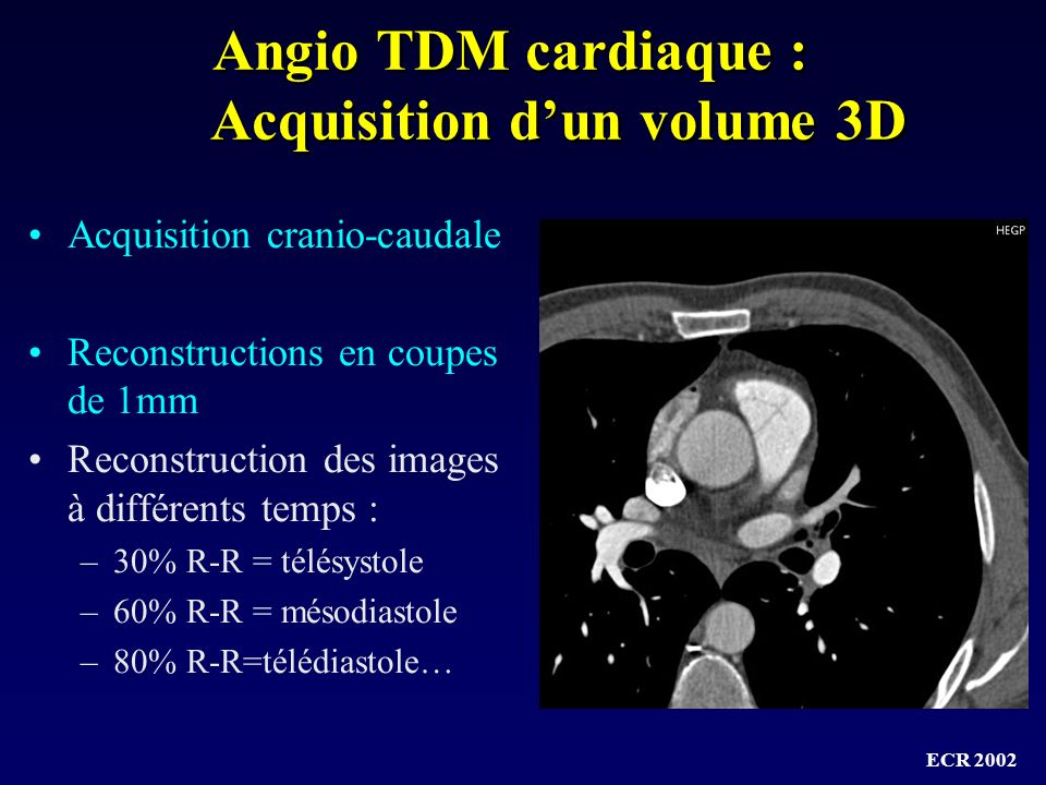 Angio TDM cardiaque : Acquisition d'un volume 3D