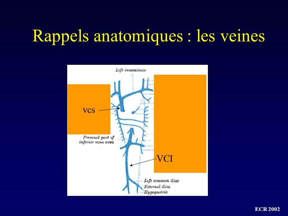 Rappels anatomiques : les veines