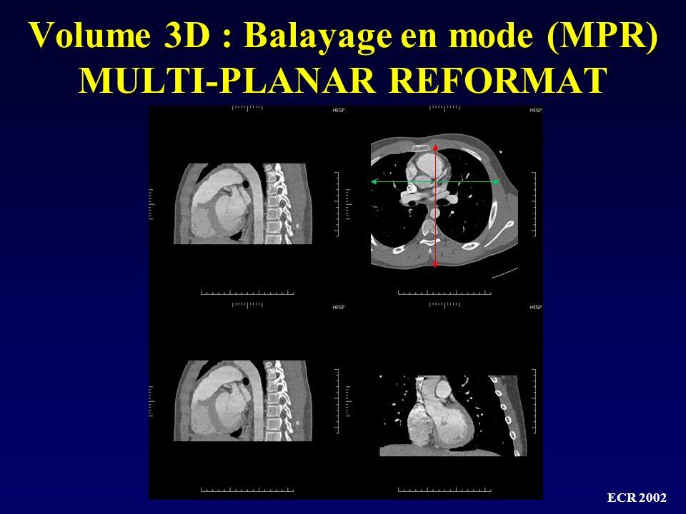 Volume 3D : Balayage en mode (MPR) MULTI-PLANAR REFORMAT