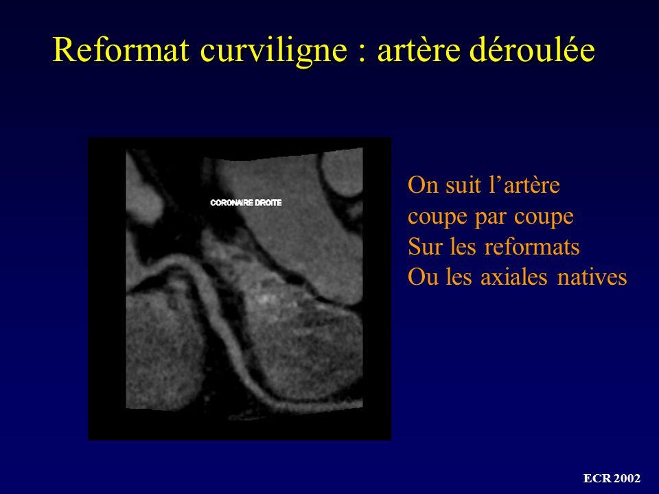 Reformat curviligne : artère déroulée