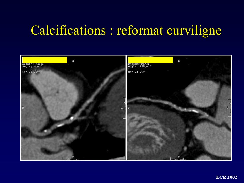 Calcifications : reformat curviligne