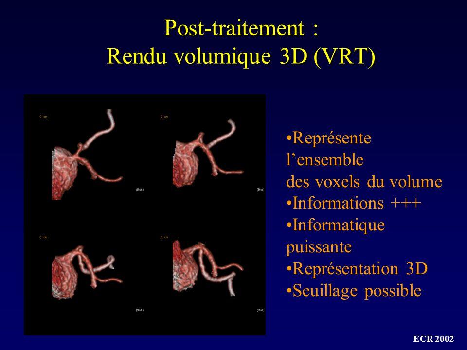 Post-traitement : Rendu volumique 3D (VRT)