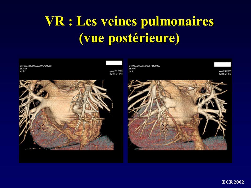 VR : Les veines pulmonaires (vue postérieure)
