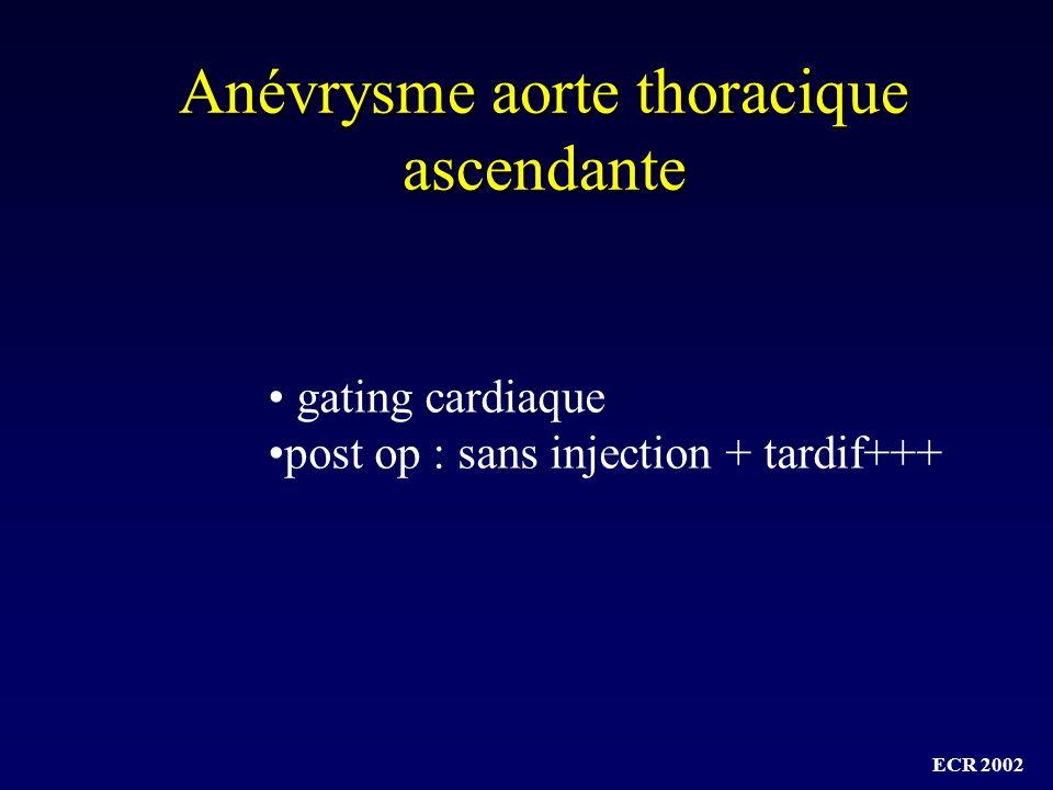 Anévrysme aorte thoracique ascendante