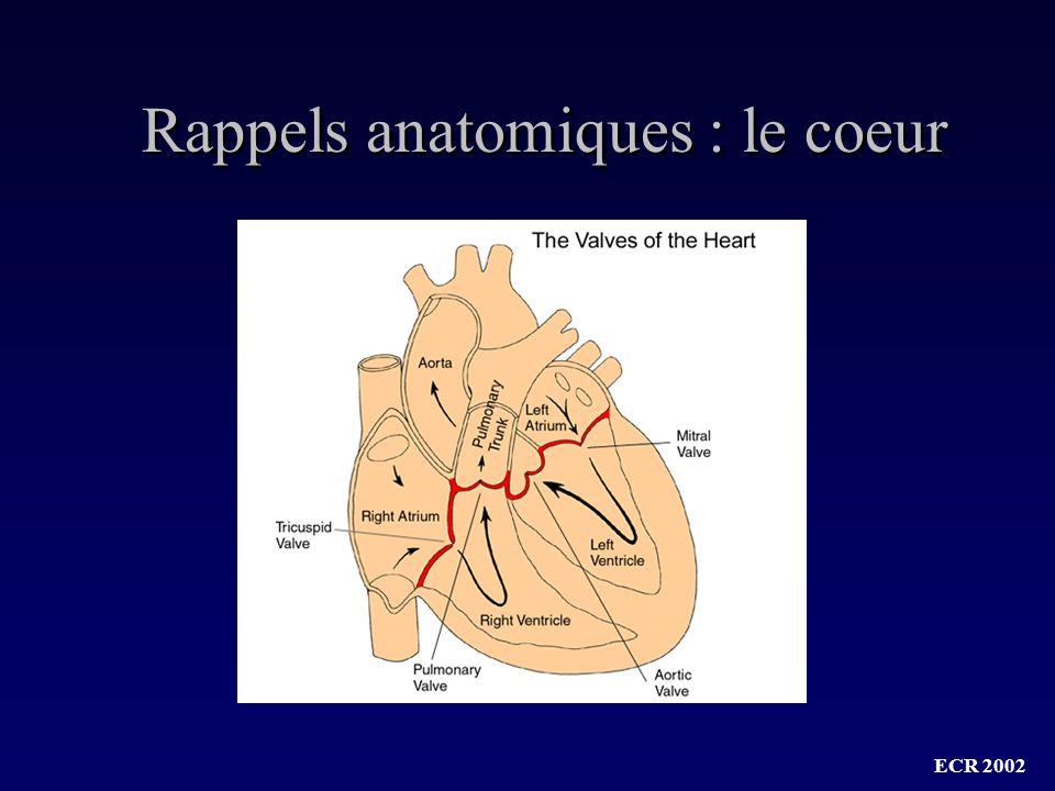 Rappels anatomiques : le coeur