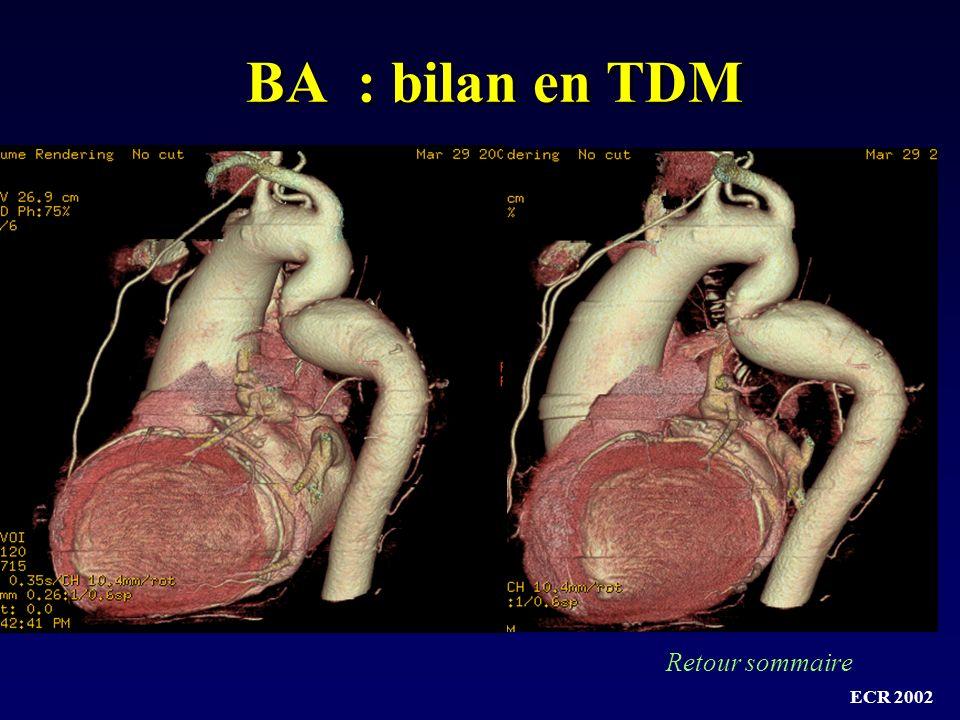 BA : bilan en TDM Retour sommaire